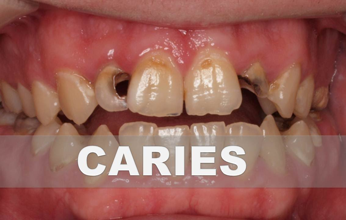 Remedios caseros para la caries dental como combatir la caries en casa youtube - Como alinear los dientes en casa sin brackets ...