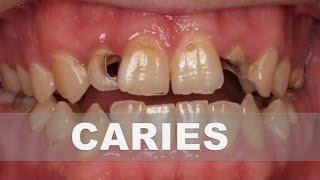 ☞ Remedios caseros para la caries dental – Como combatir la caries en casa