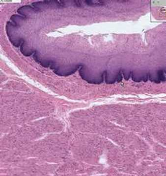 Shotgun Histology Esophagus