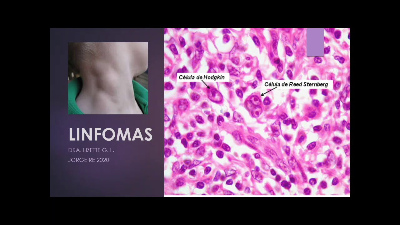 rák infome hodgkin hpv vírus a hólyagban