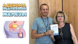 Аденома предстательной железы | Лечение простатита народными средствами