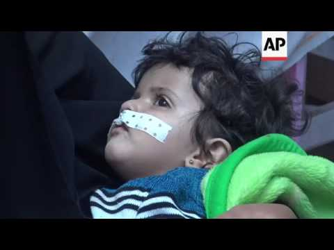 Cholera diagnoses rising in Yemeni capital