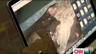 Selling Organs of Ethiopian  Eritrean   Sudanese in Sinai, Egy…