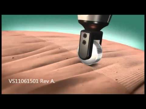 Pixel Rf From Alma Lasers How It Works Youtube