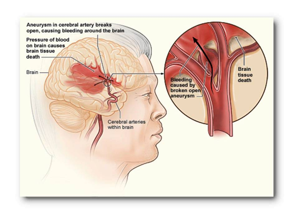 cerebrovascular accident 1 1