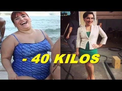 Atriz Simone Gutierrez Perde 46 Kg Após Reeducação Alimentar