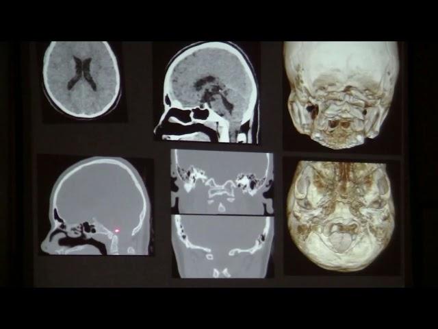 Alteraciones de la Unión cráneo vertebral, que debemos conocer. Sergio Moguillansky