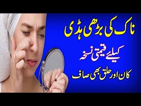 Naak Ki Haddi Ka Ilaj || Naak Ke Gadood || Nasal Polyps Treatment In Urdu/Hindi