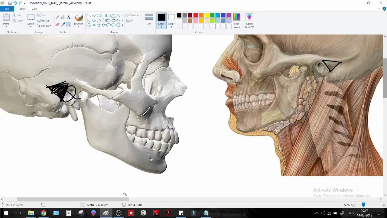MacEwen\'s Triangle - Training in Surface anatomy (ENT / SURGERY ...