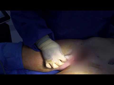 Inner Thigh Skin Laxity before BodyTite
