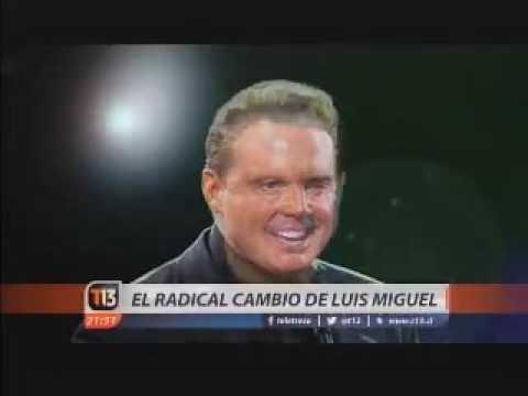 Cambio de look de Luis Miguel por el Dr.Héctor Valdés