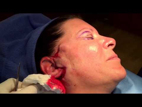 Mini Face Lift Surgery -- Short Scars -- No Anesthesia --  D