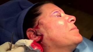 Mini Face Lift Surgery