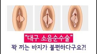 대구소음순수술, 꽉 끼는 바지가 불편하다면! 이런경우 …