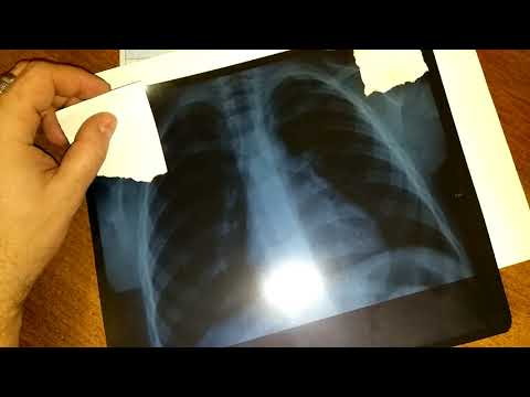 Как читать ренгеновские снимки самому. Самостоятельное изучение рентгена.
