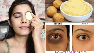 *Most Requested* How I Removed My dark Circles ACTUALLY  | Super Style Tips