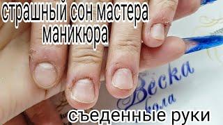 Фарш на пальцах Убитая кожа на руках клиентки Шок для мастера Шулунова Дарья