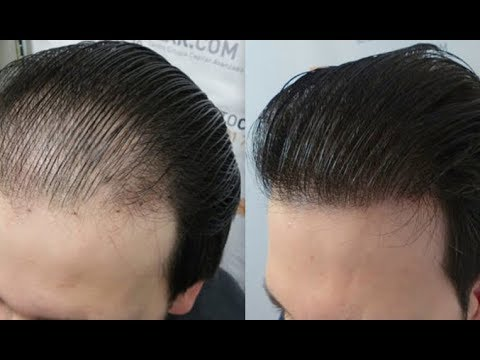 Stop Hair fall and grow hair faster,Cure Baldness & Regrow ...