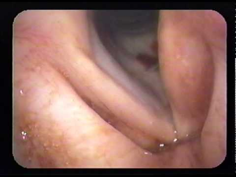 Vocal Cord Medialization to Treat  Vocal Cord Paralysis (HD)