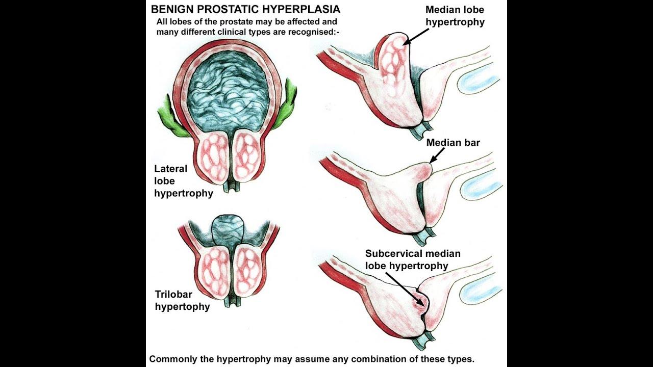 Signs Of Benign Prostatic Hyperplasia