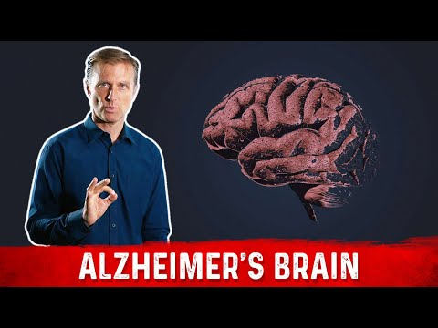 The Alzheimer's Brain