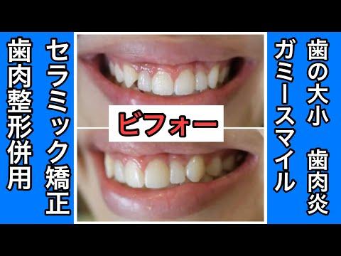 仮歯期間でも友人や家族から歯がキレイと褒められた
