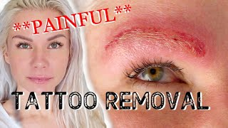 I removed my TATTOOS! **PAINFUL** LASER TATTOO REMOVAL...