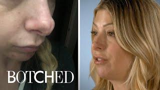 Jennifer Wants Her Jurassic Schnoz Fixed | Botched | E!