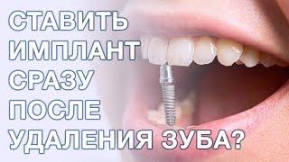 Можно и стоит ли ставить имплант сразу после удаления? Имплантация зубов.