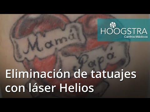 Eliminación de tatuajes con láser Helios (17098)
