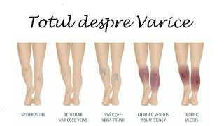 fiole de la venele venelor pe picioare descărcare cu vene varicoase ale bazinului mic