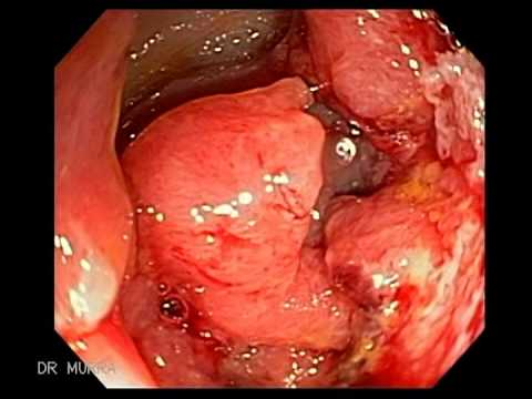 Colonoscopy of Sigmoid Colon Cancer