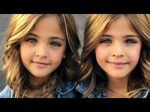 7 Niños Gemelos Impactantes Que No Creeras Que Existen