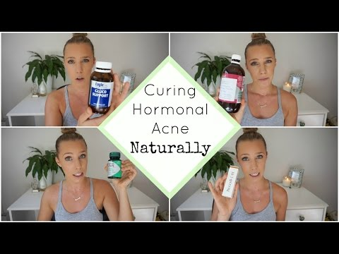 Hormonal Acne Update | PCOS | How I Cured My Acne