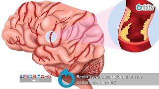 Beyin kanaması riskini arttıran nedenler nelerdir? #beyinkanaması