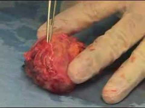 Weill Cornell Robotic Prostatectomy: Nerve Sparing Prostate Cancer Surgery (5/6)