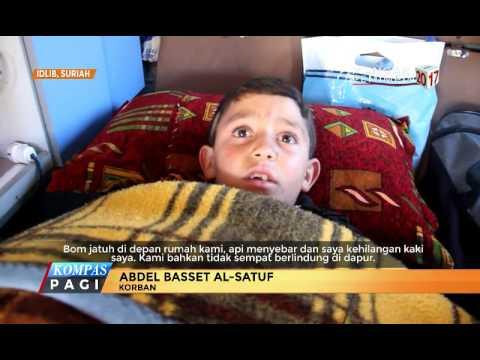 Serangan Bom, Bocah 9 Tahun Kehilangan Kakinya