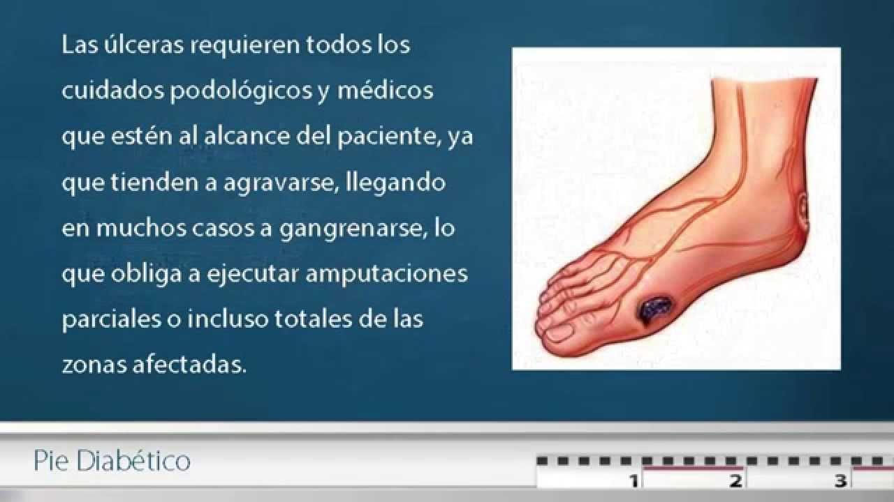 pie diabetico pdf - YouTube
