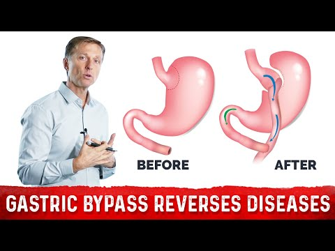 Why Gastric Bypass Reverses Diabetes and Many Diseases