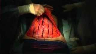 STRATAFIX used by  Dr.  Rosen in Abdominplasty CA