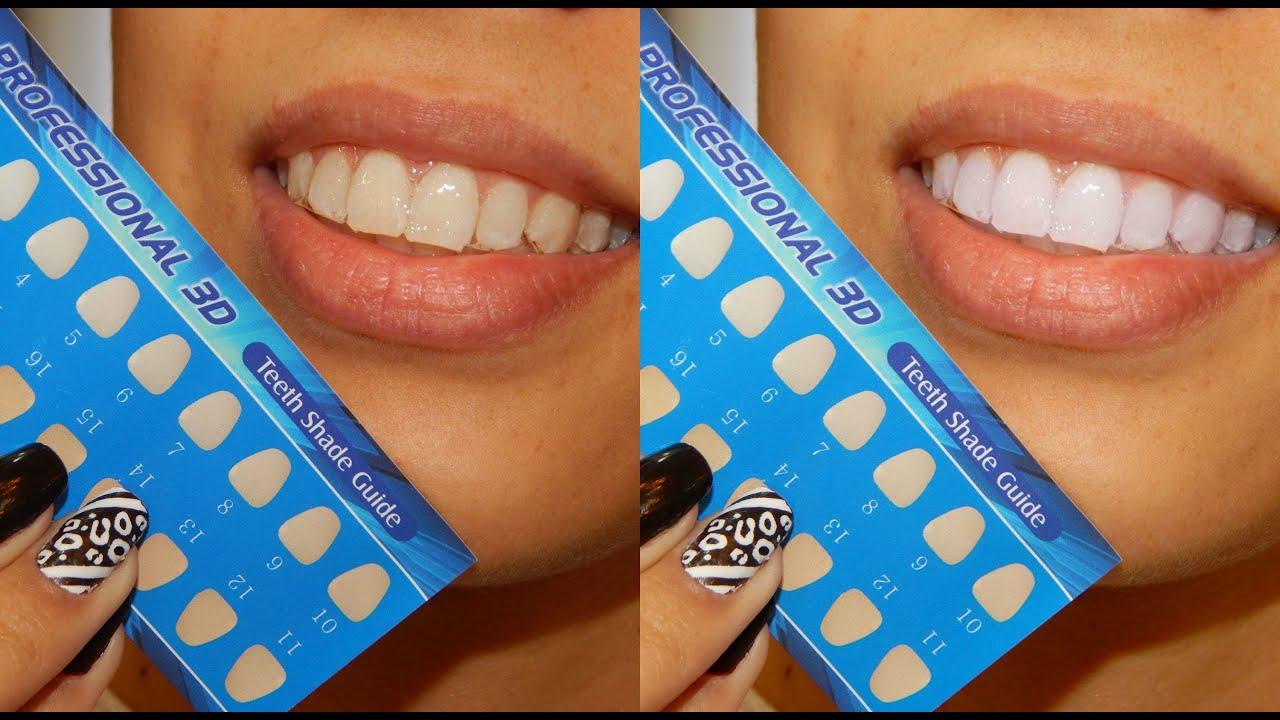 Clareamento Dental Em Casa Sem Dor E Barato Youtube