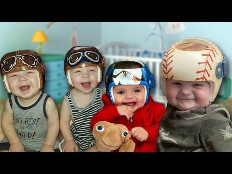 Lance Houston - Babies with Flat Head Syndrome Get Adorably Designed Helmets