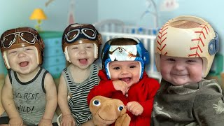 Babies With Flat Head Syndrome Get Fun Helmets