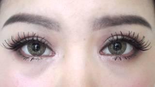 Full Incisional Double Eyelid (Blepharoplasty + Epicanthoplasty) 5 Months Update