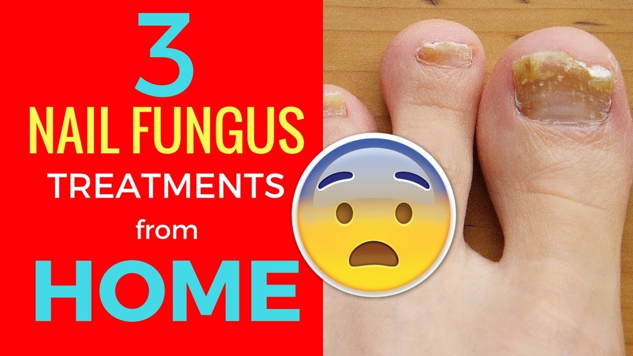 3 Nail Fungus Treatments That Work From Home - Home Remedies for ...