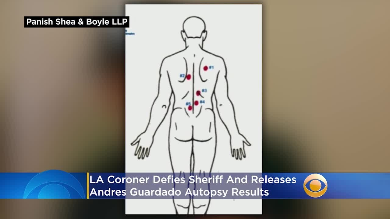 LA Coroner Defies Sheriff, Releases Andres Guardado Autopsy Results