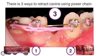canine traction by power chain in orthodontics by dr. Amr Asker