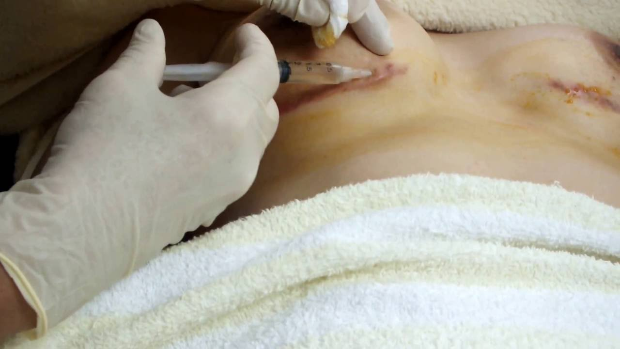 Keloid Scar Treatment Youtube