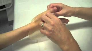How Fabricate Short Thumb Opponens Splint