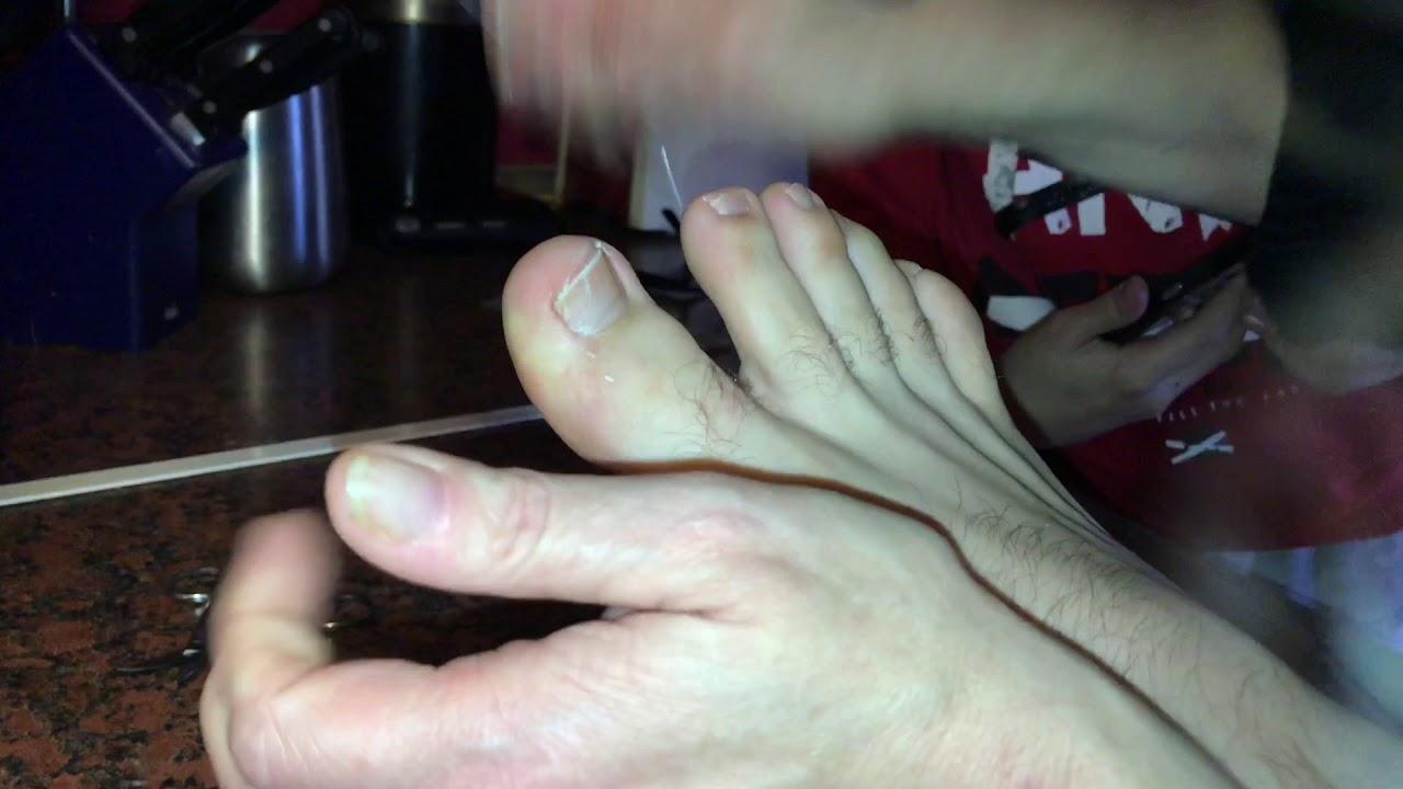 Eingewachsenen Fuß Nagel entfernen Eingewachsenen